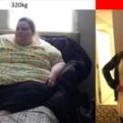 クリスティーナ・フィリップスが250㎏減量した胃縮小手術とは費用やデメリットは?【レディース有吉】